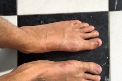 Bunion Surgery After