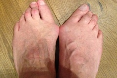 Bunion Surgery Before